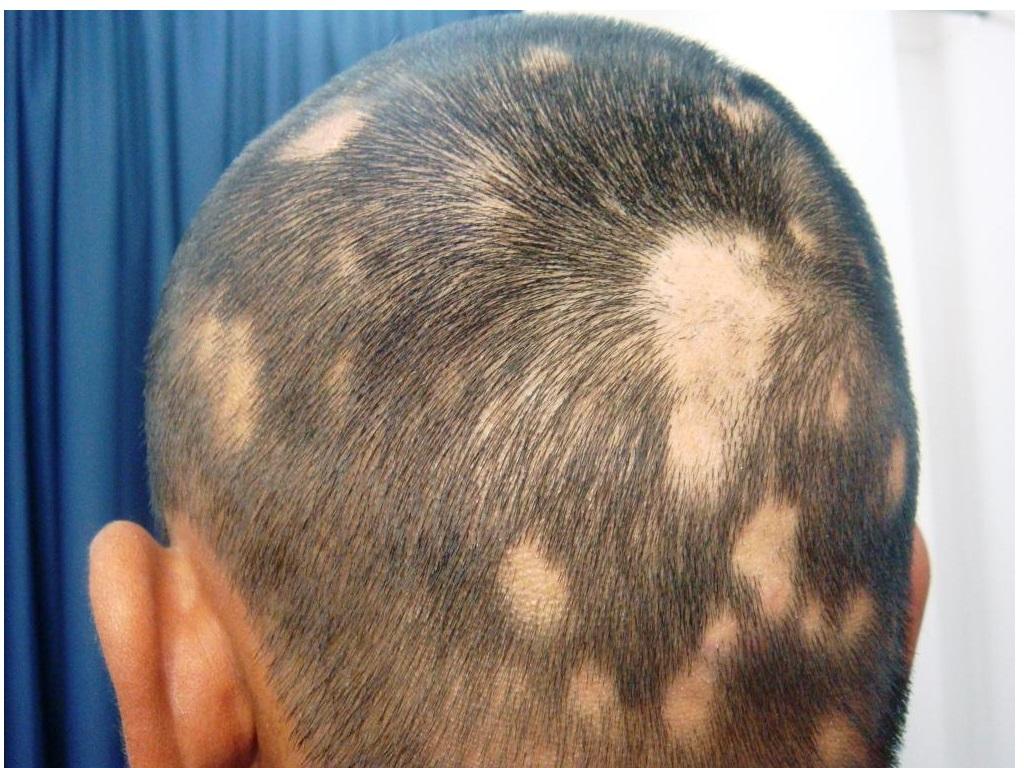 haarziekte echthaar kliniek